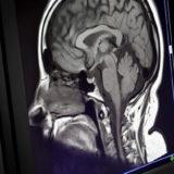 Pourquoi obtenir des résultats d'IRM tôt est important